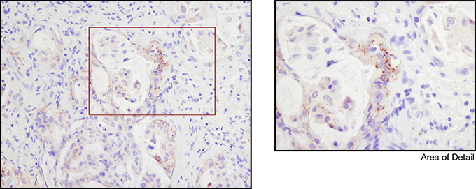 ROS1 (D4D6) Rabbit mAb #3287