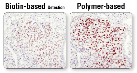 IHC Polymer-based Detection