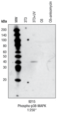iBlot (quick transfer-Invitrogen)SNAPi.d. (quick incubations-Millipore)