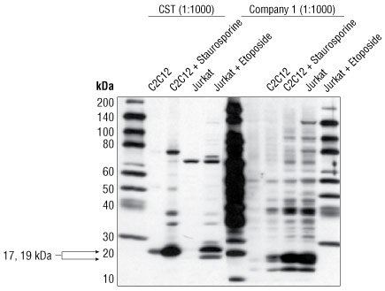 Western Blot Comparison featuring #9664